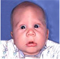 Metopic Suture Craniosynostosis