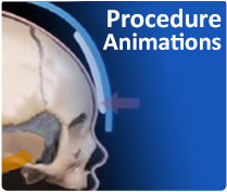 Craniosynostosis video animations