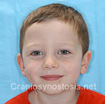 Front view after photo: coronal suture craniosynostosis case 1: Post-operation age 3 years