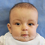 Front view after photo: coronal suture craniosynostosis case 14: Post-operation age 4 months