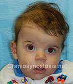 Front view before photo: coronal suture craniosynostosis case 17: Pre-operation age 5 weeks