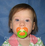 Front view after photo: coronal suture craniosynostosis case 2: Post-operation age 1 years