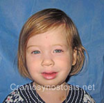 Front view after photo: sagittal suture craniosynostosis case 2: Post-operation age 2 years