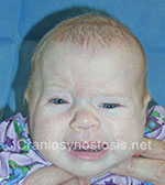 Front view before photo: coronal suture craniosynostosis case 2: Pre-operation age 3 weeks