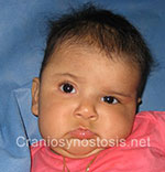 Front view before photo: coronal suture craniosynostosis case 20: Pre-operation age 4 weeks