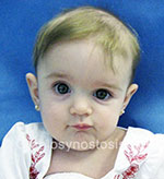 Front view before photo: coronal suture craniosynostosis case 22: Pre-operation age 5 weeks
