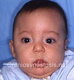 Front view before photo: coronal suture craniosynostosis case 23: Pre-operation age 4 weeks