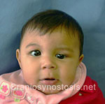 Front view before photo: coronal suture craniosynostosis case 28: Pre-operation age 5 weeks