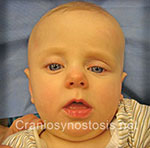 Front view before photo: coronal suture craniosynostosis case 29: Pre-operation age 5 weeks
