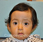 Front view after photo: sagittal suture craniosynostosis case 4: Post-operation age 16 months