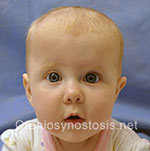 Front view after photo: sagittal suture craniosynostosis case 5: Post-operation age 3 months