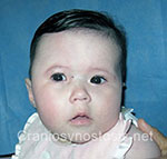 Front view before photo: sagittal suture craniosynostosis case 6: Pre-operation age 3 weeks