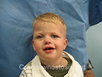 Front view after photo: coronal suture craniosynostosis case 7: Post-operation age 2 years