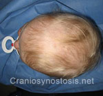 top view after photo: coronal suture craniosynostosis case 7: Post-operation age 9 months