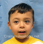 Front view after photo: coronal suture craniosynostosis case 8: Post-operation age 9 months