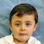 Front view after photo: coronal suture craniosynostosis case 8: Post-operation age 2 years
