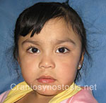 Front view after photo: metopic suture craniosynostosis case 11: Post-operation age 2 Years