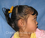 Side view before photo: metopic suture craniosynostosis case 11: Pre-operation age 2 Years