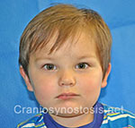Front view after photo: metopic suture craniosynostosis case 12: Post-operation age 2.5 years