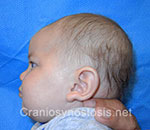 Side view before photo: metopic suture craniosynostosis case 12: Pre-operation age 4 weeks