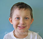 Front view after photo: metopic suture craniosynostosis case 14: Post-operation age 4 years