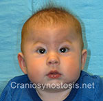 Front view before photo: metopic suture craniosynostosis case 15: Pre-operation age 5 weeks