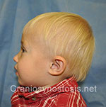 Side view after photo: metopic suture craniosynostosis case 2: Post-operation age 1.5 years