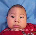 Front view before photo: metopic suture craniosynostosis case 22: Pre-operation age 4 weeks