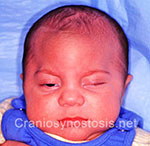 Front view before photo: metopic suture craniosynostosis case 26: Pre-operation age 2 weeks