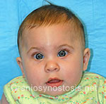 Front view before photo: metopic suture craniosynostosis case 28: Pre-operation age 7 weeks