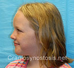 Side view after photo: metopic suture craniosynostosis case 3: Post-operation age 9 years