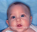 Front view before photo: metopic suture craniosynostosis case 32: Pre-operation age 5 weeks