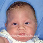 Front view before photo: metopic suture craniosynostosis case 34: Pre-operation age 3 weeks