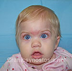 Front view after photo: metopic suture craniosynostosis case 37: Post-operation age 2 months