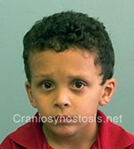 Front view after photo: metopic suture craniosynostosis case 4: Post-operation age 4 years