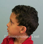 Side view after photo: metopic suture craniosynostosis case 4: Post-operation age 4 years