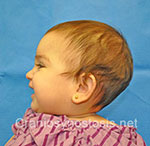 Side view after photo: metopic suture craniosynostosis case 5: Post-operation age 4 months
