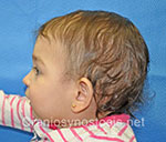 Side view after photo: metopic suture craniosynostosis case 5: Post-operation age 8 months