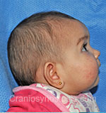 Side view before photo: metopic suture craniosynostosis case 5: Pre-operation age 6 weeks