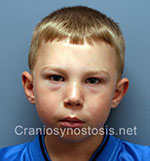 Front view after photo: metopic suture craniosynostosis case 6: Post-operation age 6 years