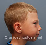 Side view after photo: metopic suture craniosynostosis case 6: Post-operation age 6 years