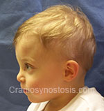 Side view after photo: metopic suture craniosynostosis case 7: Post-operation age 14 months