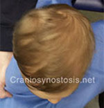 Top view after photo: metopic suture craniosynostosis case 7: Post-operation age 14 months