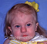 Front view after photo: metopic suture craniosynostosis case 8: Post-operation age 10 months