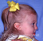 Side view after photo: metopic suture craniosynostosis case 8: Post-operation age 10 months