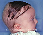 Side view before photo: metopic suture craniosynostosis case 8: Pre-operation age 7 weeks