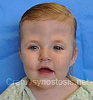 Front view after photo: multiple suture craniosynostosis case 2: Post-operation age 1 Year