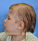 Side view before photo: multiple suture craniosynostosis case 2: Post-operation age 1 Year