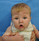 Front view after photo: multiple suture craniosynostosis case 2: Post-operation age 3 months