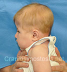 Side view before photo: multiple suture craniosynostosis case 2: Post-operation age 3 months